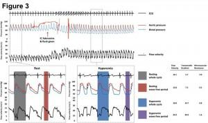 Figure 2. 安静時および心筋充血時における冠血流速度と冠内圧の測定