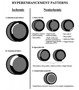 図4 各疾患における遅延造影像(LGE)分布パターン   文献[12]より引用