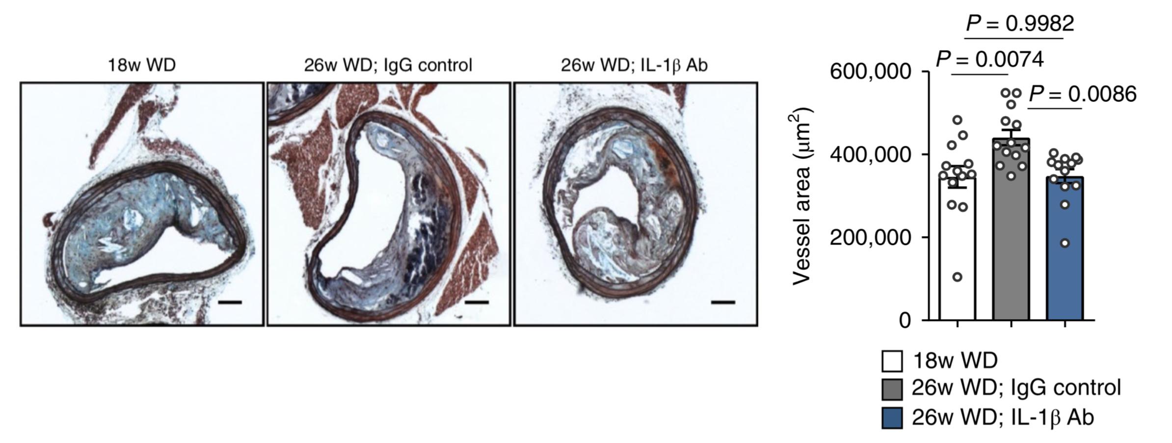 図5. マウス腕頭動脈切片における血管径評価(左:投薬前、中:プラセボ投与後、右:IL-1β Ab投与後)