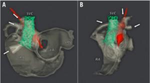 図3:3D CT画像