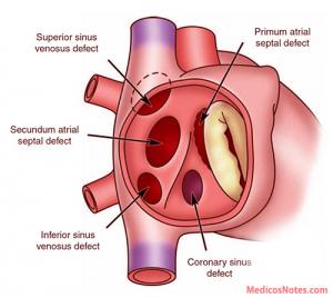 図1:心房中隔欠損症