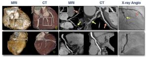 図1 同一症例のMRI, CT, CAG画像  文献[2] より引用