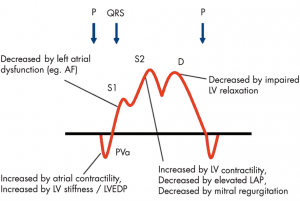 Associated factors of PV flow